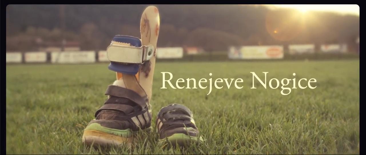 Renejeve nogice